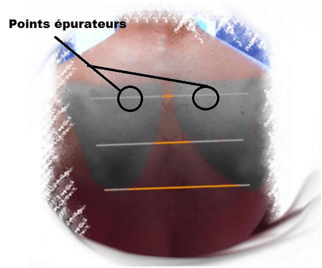 points épurateurs