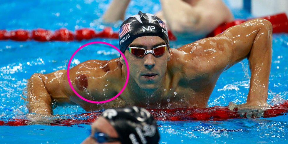 landscape-1470629095-michael-phelps-cupping
