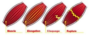 elongation-claquage