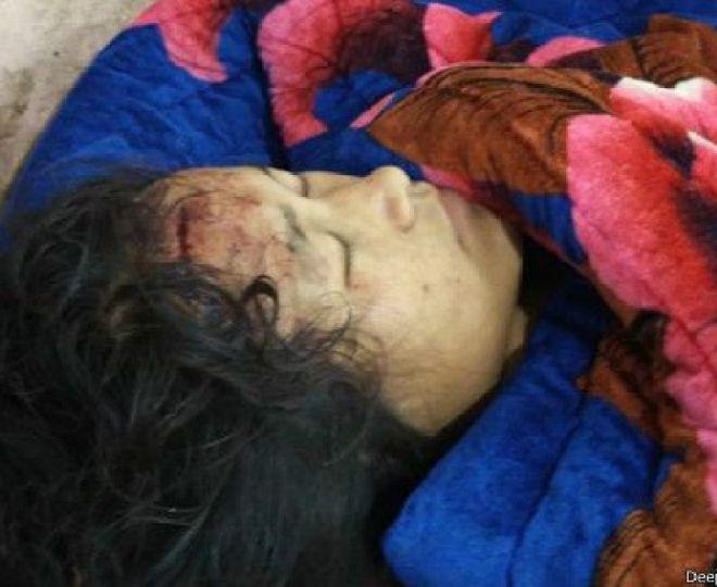 फोटो पत्रकार दीपक का कहना है कि उन्होंने क़रीब 35 घायलों को अस्पताल में देखा है.