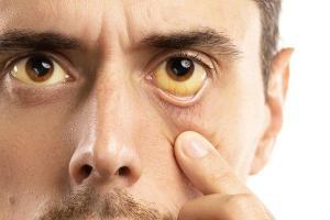 पीलिया के लक्षण क्या होता है और इसके उपाय क्या हैं?