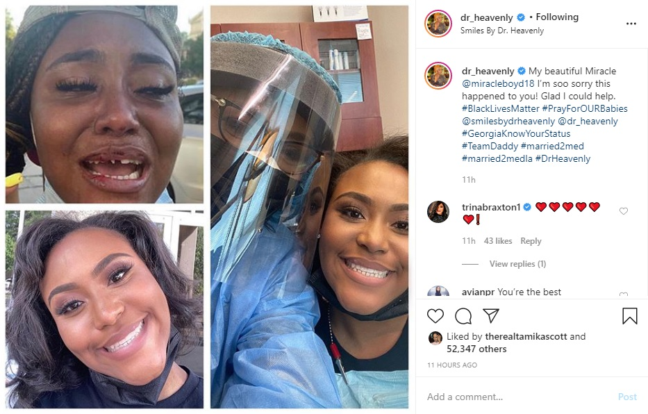 """Miracle Boyd went viral, last week, when she revealed the police officers knocked her teeth out, during a peaceful protest, in Chicago. Hearts broke for her, seeing her beautiful smile ruined, for no reason. But, Dr. Heavenly, of """"Married To Medicine"""" fame, took matters into her own hands, and she decided to accommodate Miracle, in Atlanta, where she provided her with veneers, for free."""