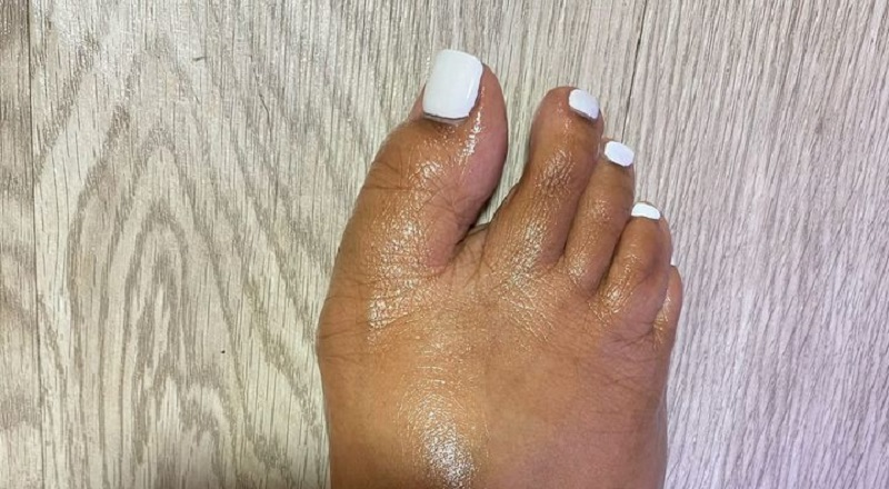 DeAndre Moore shared a photo to Facebook, of his girlfriend's toes. Jokingly, he shared this on Facebook, with her crooked toes. He said he got her toes done and wanted to know what the people thought, and the people in the Facebook comments did not hold back.