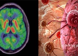Οι Επιστήμονες έχουν Αποδείξει ότι τα Αρνητικά Συναισθήματα Συμβάλλουν στην Ανάπτυξη του Καρκίνου