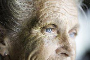 senior bruising