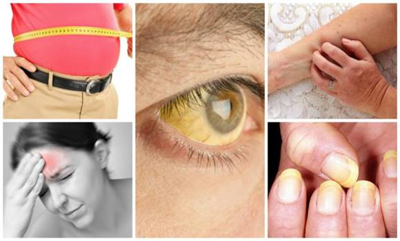 A májmegnagyobbodás jelei, ami az életed veszélyezteti + 3 gyógymód, ami valóban hat!