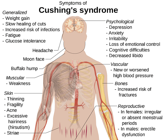 Cushing syndrome