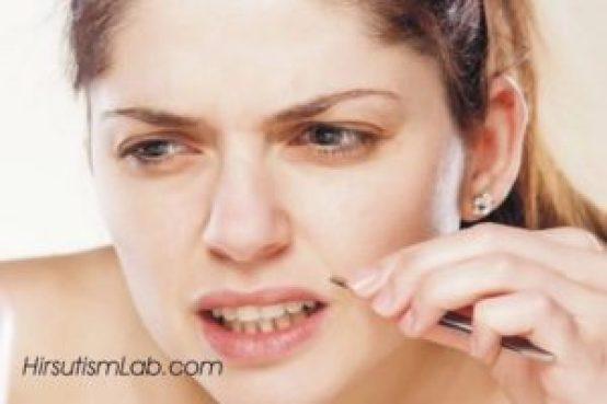 plucking-hirsutism-treatment