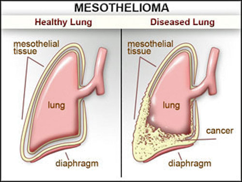 Image Result For Is Mesothelioma Cancera
