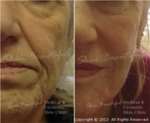 Non surgical facelift by Helen Bowes