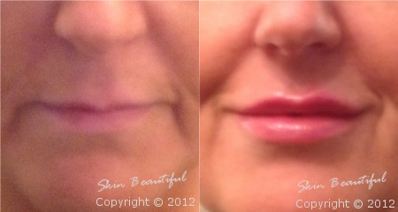 Lips by Helen Bowes before and after treatment