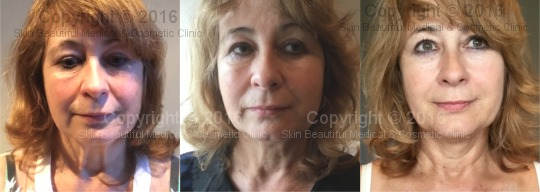 PDO thread neck & face lift by Helen Bowes