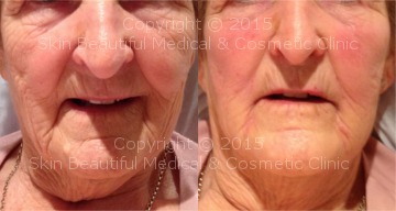 SIgnature 8 point non surgical facelift by Helen Bowes