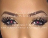 Eyebrow lift _Brow flick - Nike tick with Botox® or dermal fillers