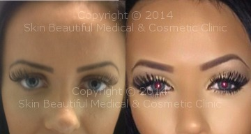 Eyebrow lift (Riah Reed) Before & After