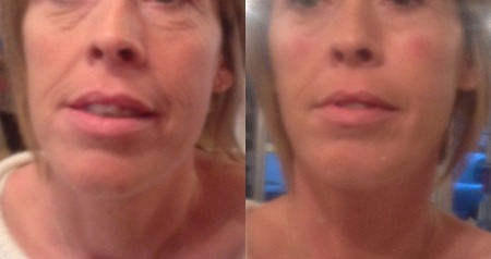 CHEEKS! by HELEN BOWES before and after treatment