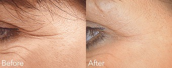 Crows Feet Before & After Treatment