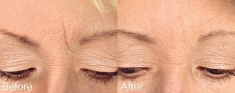 Glabellar Lines before & After Treatment