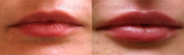 Lip augmentation and correction by expert Helen Bowes