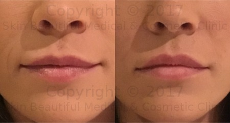 lip filler by Helen Bowes Cupids Bow definition with Juvederm