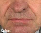 Nasolabial folds (nose to mouth lines) treatments