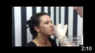 Advanced cheek augmentation treatment on YouTube