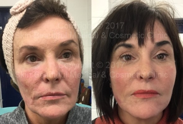 Pdo thread lift before and after by Helen Bowes