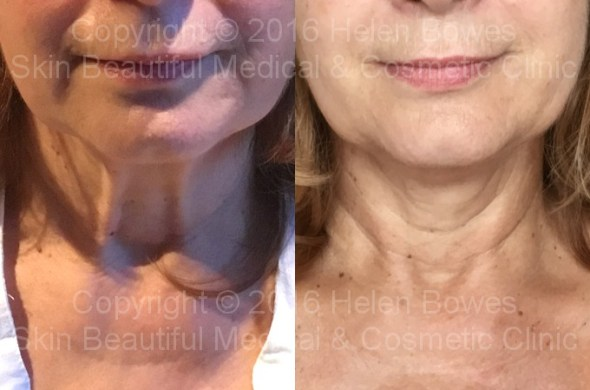 PDO thread lift neck before & after by Helen Bowes