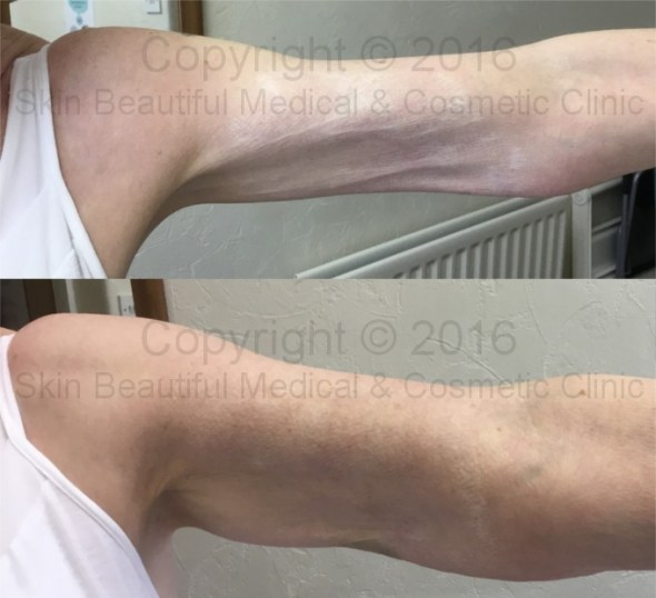 PDO thread skin tightening for arms by Helen Bowes