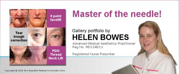 Helen Bowes expert in advanced & complex dermal filler procedures - gallery portfolio