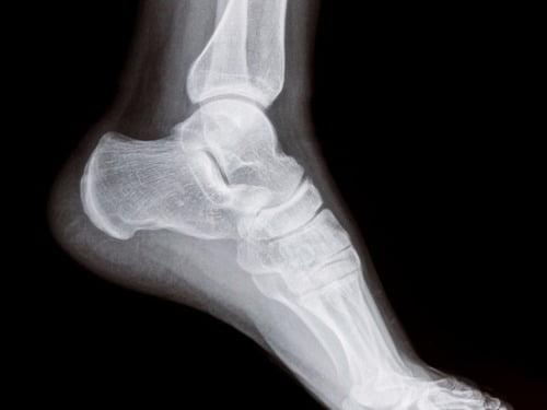 cmt foot symptoms