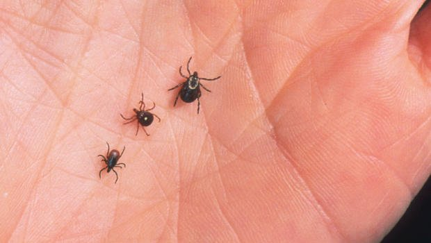 Lyme Disease and Charcot-Marie-tooth: What You Need to Know