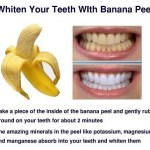 Picture: Whiten your Teeth with Banana Peel