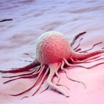 Picture about Latest Cancer Information from Johns Hopkins
