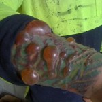 Picture about Tattoo Caused Infections