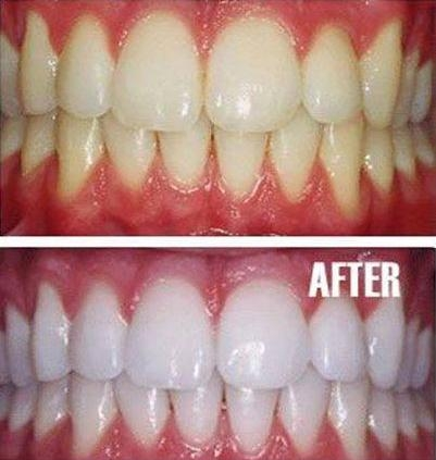 Natural Teeth Whitening Home Remedy Facts Hoax Or Fact