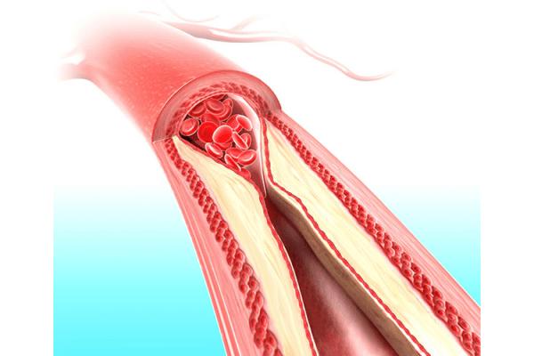Picture about Pomegranate Prevents Coronary Artery Disease Progression