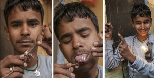 Picture about Indian Teen 'Electric Boy' Survives a Shocking 11,000 Volts