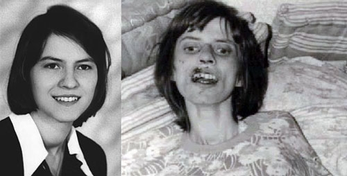Real and Exact Exorcism Audio of Anneliese Michel: Facts
