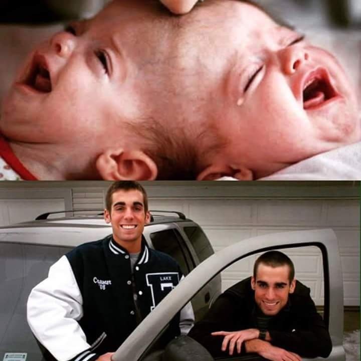 Before & Now Pictures of Conjoined Twins Separated by Dr. Ben Carson in 1987: Facts - Hoax Or Fact