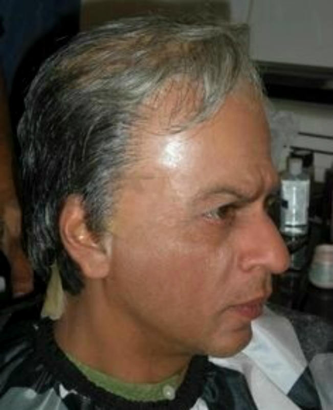 Picture of Shah Rukh Khan Shocking Bald Picture Without Makeup and Wig