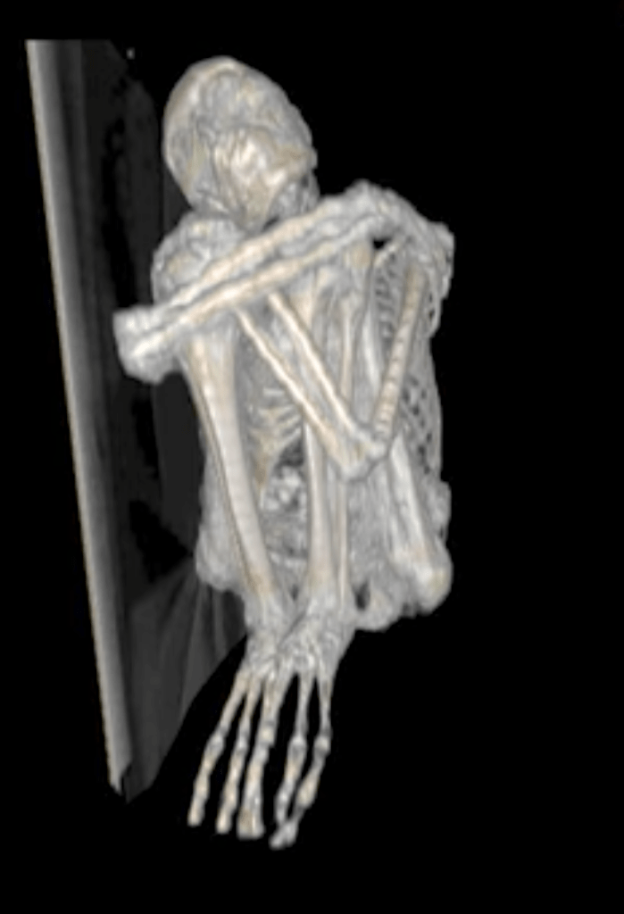 Picture: CAT Scan of the Three-fingered Body
