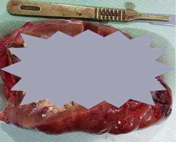 Disturbing Picture of Coke Causing Kidney Full of Stones