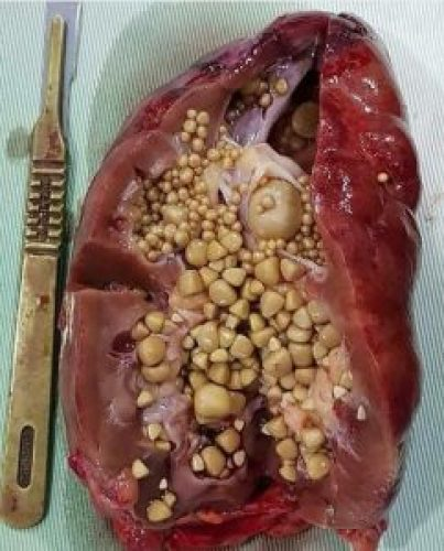 Disturbing Picture of Coke Causing Kidney Full of Stones