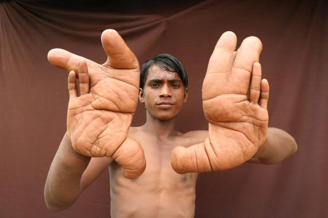 Boy with Giant Hands that Grew 12 Inches Long: Fact Check