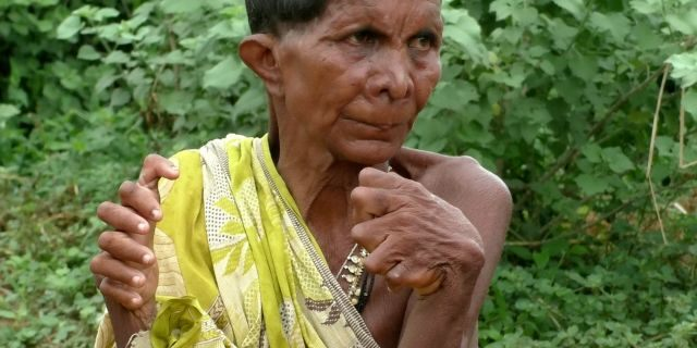 Image of 63-year-old Nayak Kumari Born with 20 toes and 12 fingers