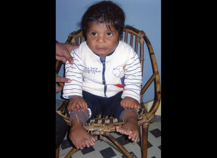 Image of Akshat Saxena born with 34 fingers and toes