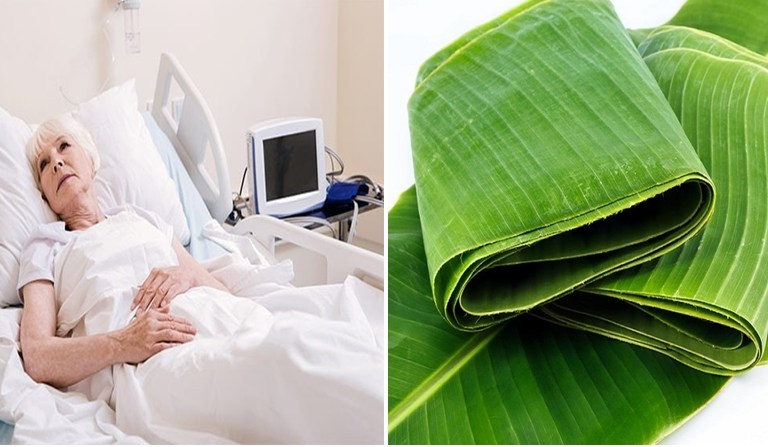 Fresh Banana Leaf Heals Bedsores: Fact Check