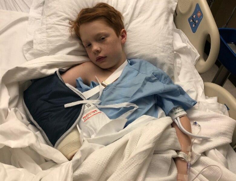 Image of Ozark boy broke both bones in his right wrist