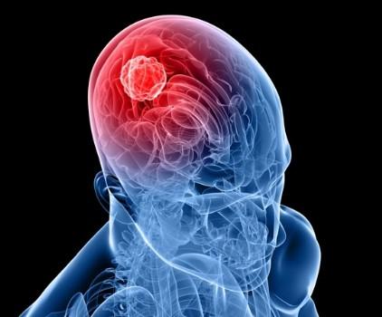 aklını kullanmak çok önemlidir. Aklını kullanmayan insana deli değil, salak denir. Akıl her insana Allah'ın verdiği en büyük nimetlerden biridir. Aklını kullanmak veya salaklık